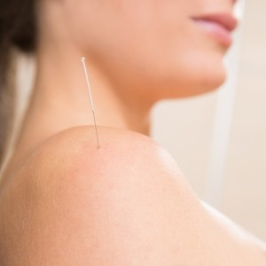 Can acupuncture combat inflammation?